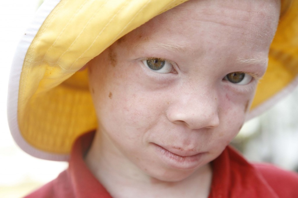 A boy in Tanzania with albanism